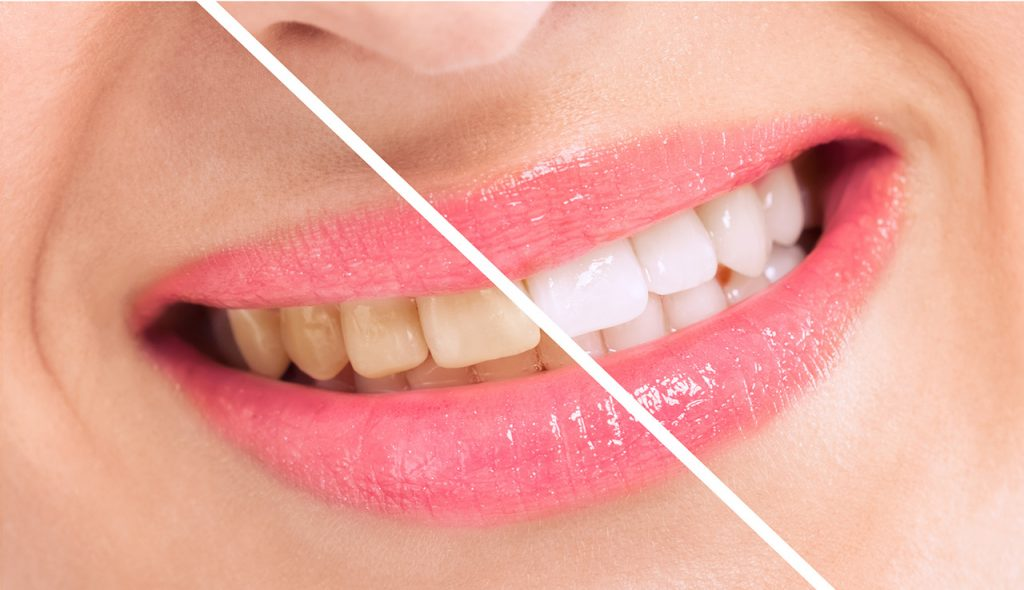 Forniture dentali | Dental Club